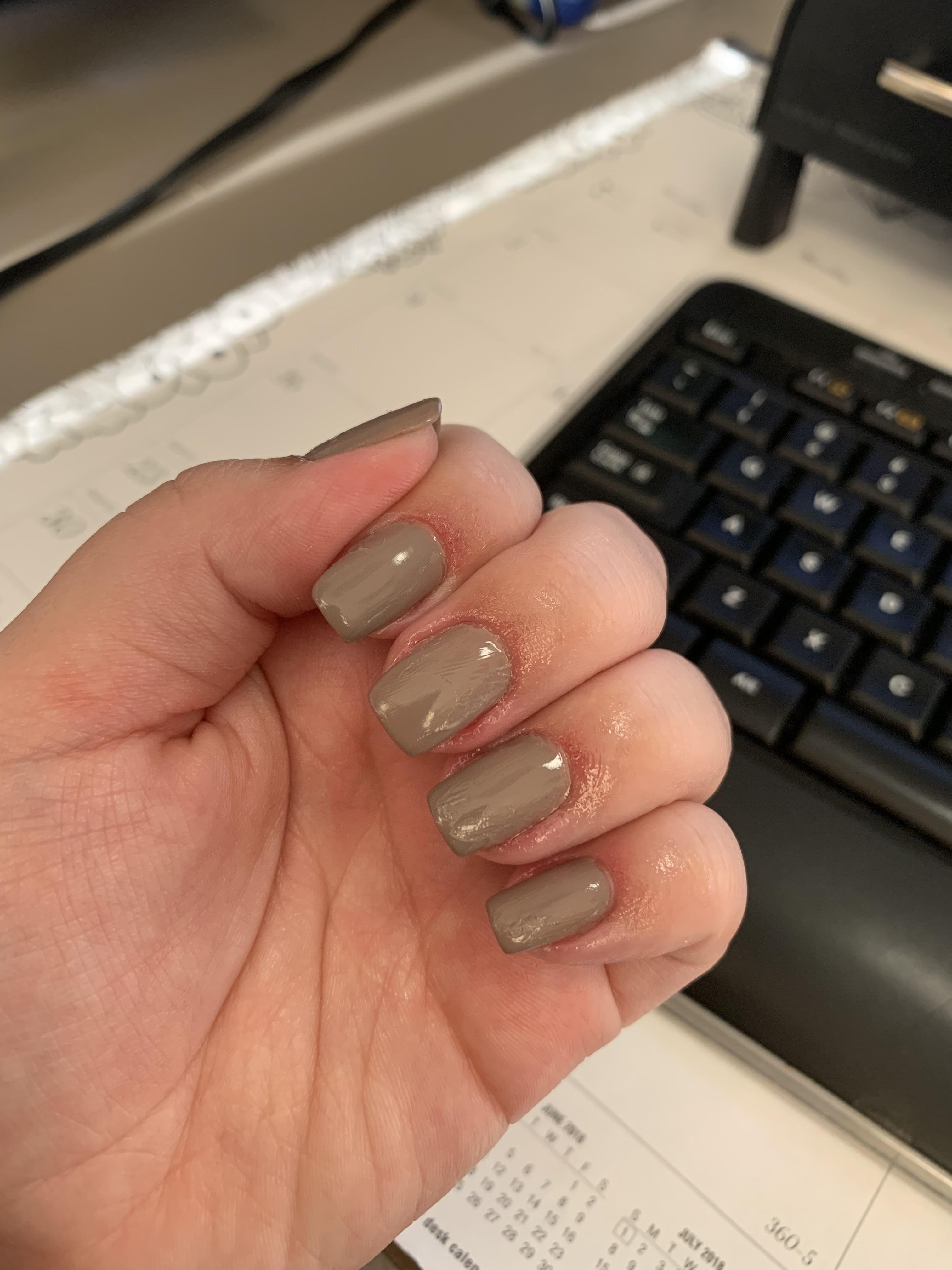 Nails Around Me : nails, around, Manicure, Night, Bleeding, Advice, Around, Nails?, Right, Vaseline, Nails