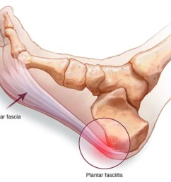 too much stress over stretching and overuse of this ligament and bam pain  [ 1264 x 936 Pixel ]