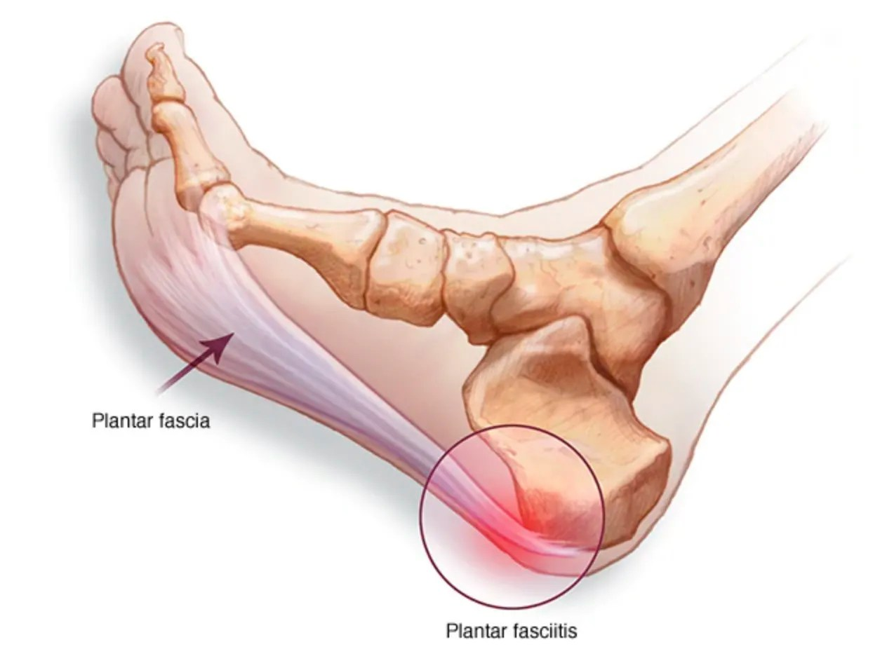 hight resolution of too much stress over stretching and overuse of this ligament and bam pain