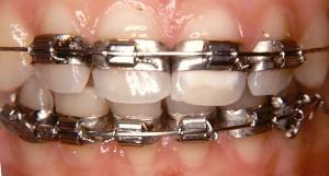 """Résultat de recherche d'images pour """"bagues orthodontie"""""""