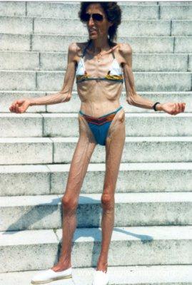 La Femme La Plus Maigre Du Monde : femme, maigre, monde, Maigre, Femme, Monde, Hazekillers
