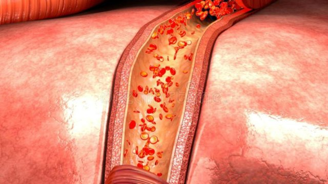fibromyalgia  mystery  solved2 300x169 - Fibromyalgia Mystery Decoded! Researchers Detect The Cause Of Pain In Blood Vessels