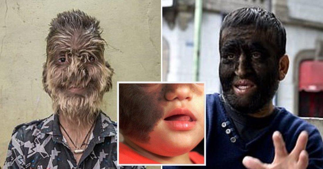 werewolf5.png?resize=1200,630 - 16 Bébés ont contracté une maladie rare appelée «syndrome de loup-garou» après avoir pris des médicaments contaminés