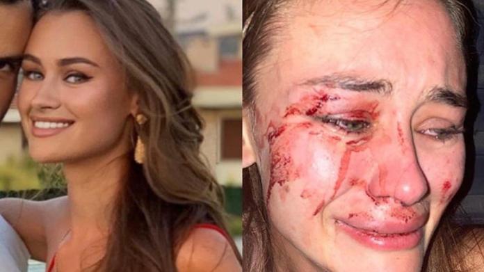 Ünlü model İzmir'de güvenlik görevlilerinin saldırısına uğradı