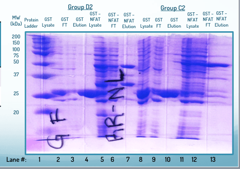 lab techniques - Help analyzing SDS-Page gel - Biology Stack Exchange