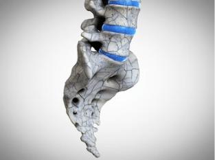 腰椎爆裂性骨折损伤马尾神经的患者朋友,饮食应注意哪些?平常需要注意什么?-小柚妹站