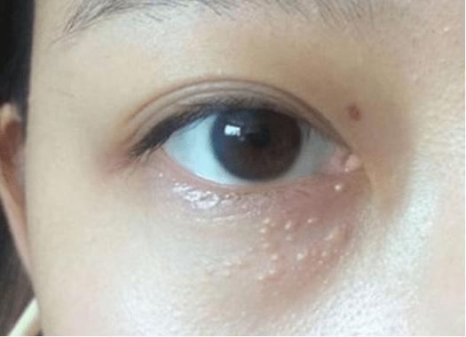 欧丽妍护肤知识:眼周长了脂肪粒,我们该怎么护肤?-小柚妹站