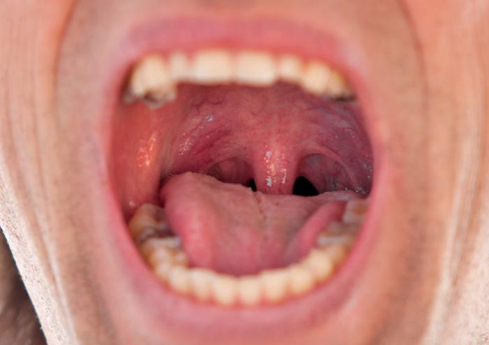 Swollen uvula: Causes symptoms and remedies