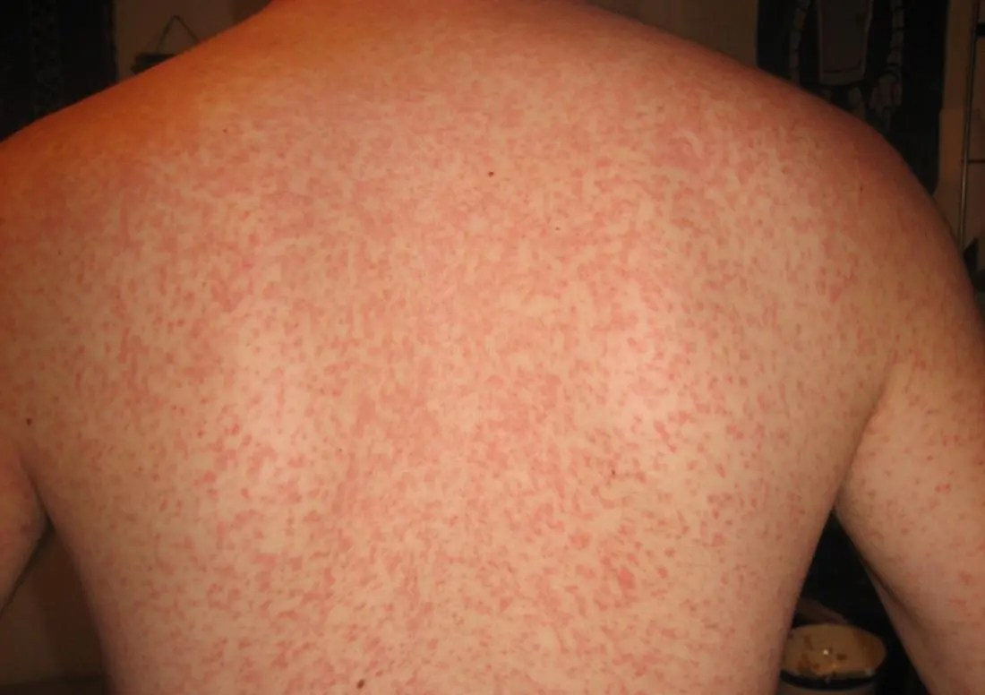 Viral rash: Types, symptoms, and treatment in adults and babies