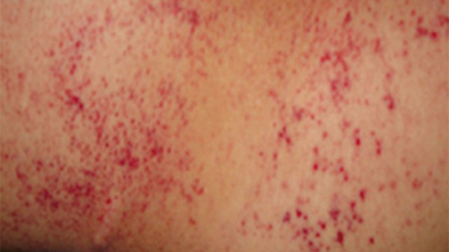 Petechiae: Causes, Treatments, Pictures, and More