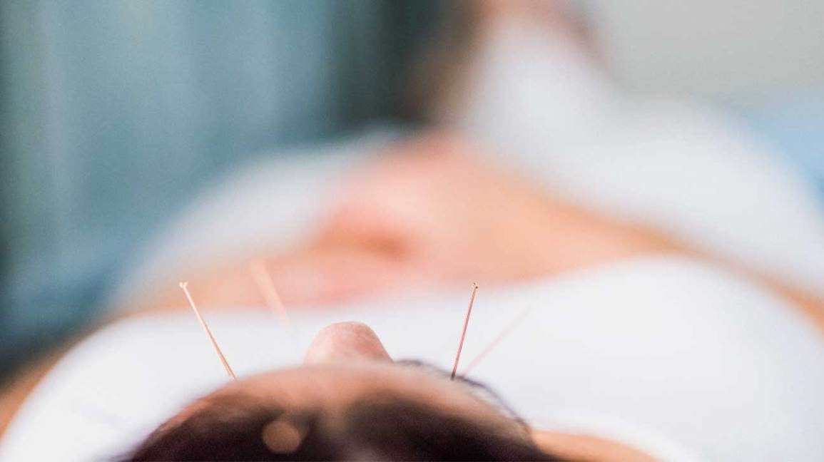 acupuncture for depression does