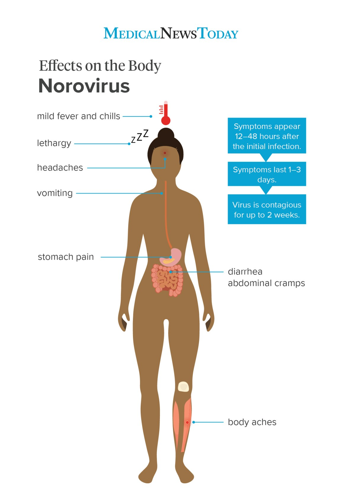 Norovirus: Symptoms, treatment, and prevention