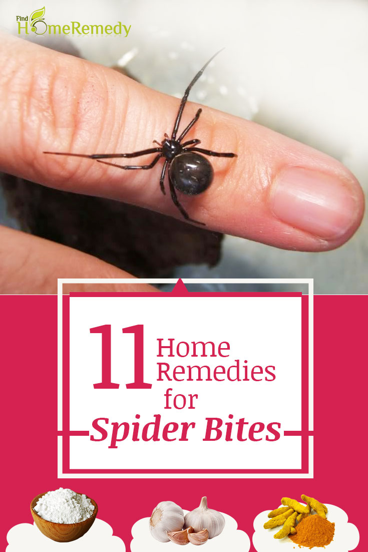 11 Home Remedies For Spider Bites - Natural Treatments ...