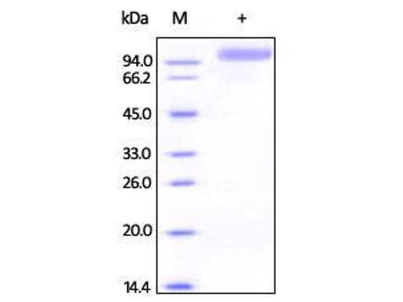 Active 人 V-Erb-B2 erythroblastic Leukemia Viral Oncogene