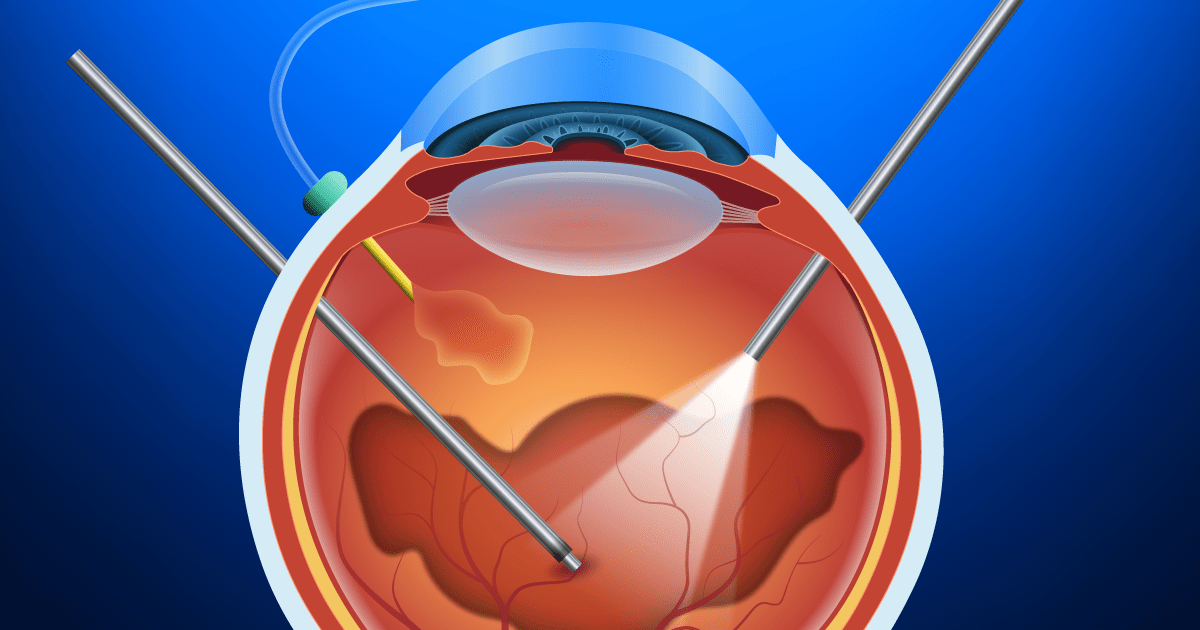 diagram for eye surgery cartoon cat5e wiring pdf vitrectomy and vitreoretinal procedures - allaboutvision.com