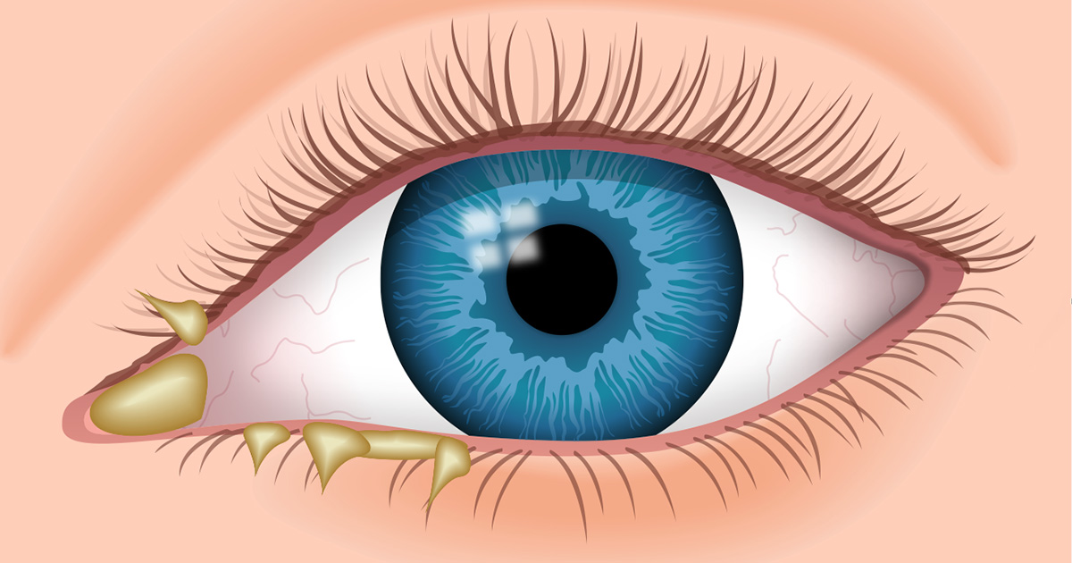 eye discharge causes types