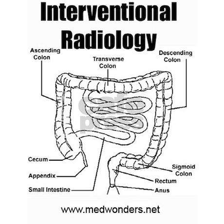 Interventional Radiology Nurse Coffee Mugs