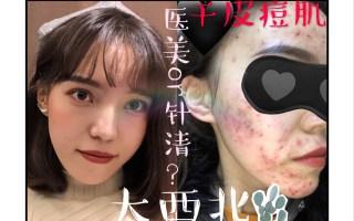 【初星】烂脸修复历程,医美护肤or针清谁更靠谱?【下】