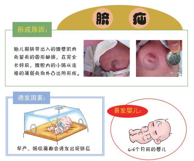 崔玉濤談護理疝氣寶寶。繼續等等看。還是外科就診? - 每日頭條
