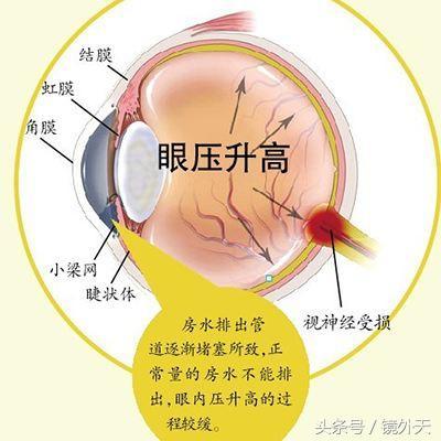 青光眼離你多遠?原理?危害?如何有效的預防青光眼? - 每日頭條