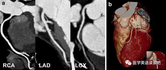 冠狀動脈CTA和5年心肌梗死風險 Coronary CTA and 5-Year Risk of MI - 每日頭條