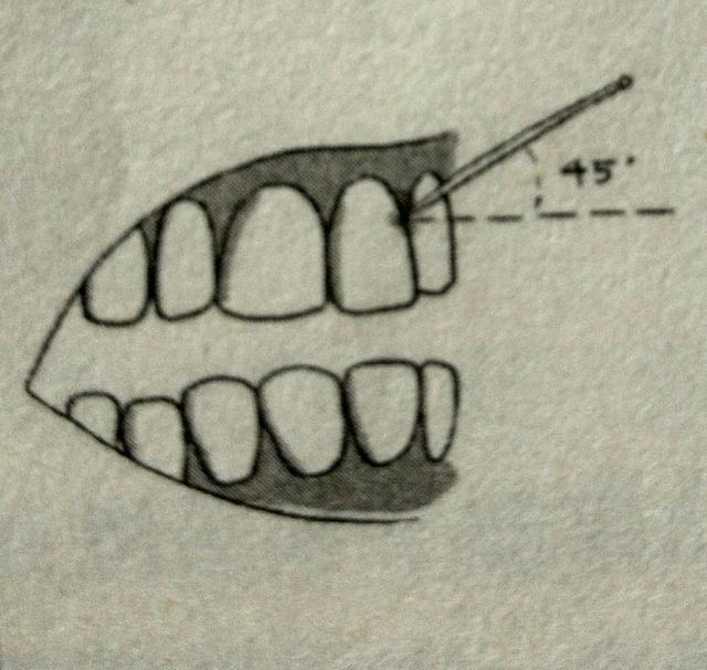 牙籤你真的會用嗎?教你正確使用牙籤! - 每日頭條
