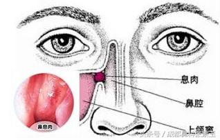 鼻息肉手術後還有可能復發!那還有手術的必要嗎? - 每日頭條