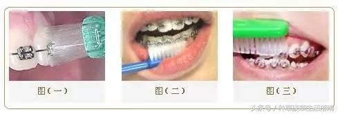 戴牙套能不能用電動牙刷? - 每日頭條
