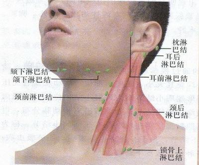 為什麼身體某一部位發炎時,附近的淋巴結會腫大? - 每日頭條