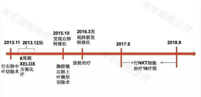 「直腸癌肺轉移。NKT治療案例展示」清華NKT · 樂和親友 ·2017-17 - 每日頭條