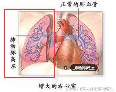 肺動脈高壓患者75%死於診斷後的5年內。平均生存期為1.9年 - 每日頭條