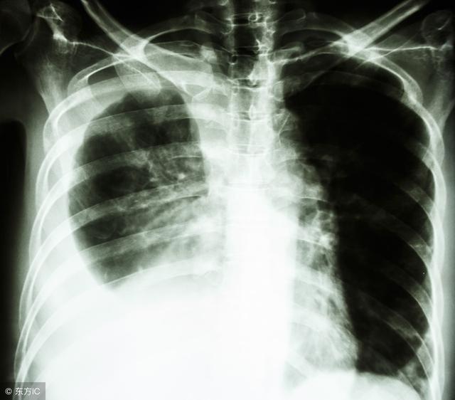 不典型肺炎與肺癌如何鑑別,肺含氣量少,病毒傳播到細支氣管,支氣管一圈一圏相連像蜂窩一樣