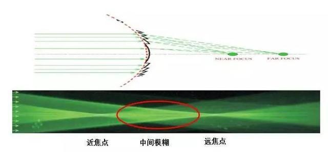 新無級人工晶體:活力連續 不再焦慮 - 每日頭條
