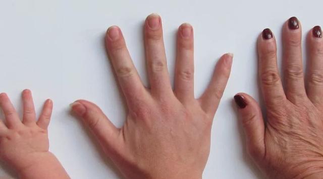 小心指甲上出現的豎紋,這可能是體內器官病變的預兆! - 每日頭條