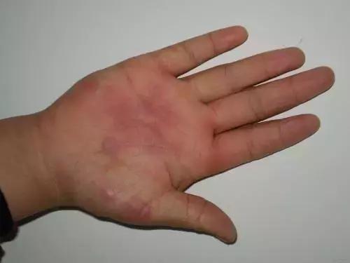 老人友家:老人燙傷後怎麼辦?燙傷後傷口怎麼處理? - 每日頭條