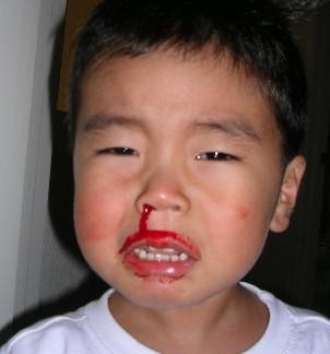 寶寶流鼻血了怎麼辦 - 每日頭條