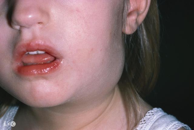 這5個癥狀可以發現早期口腔癌,你了解嗎? - 每日頭條