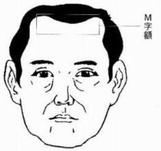 額上有紋並不僅僅是皺紋。更是你運勢的徵兆 - 每日頭條