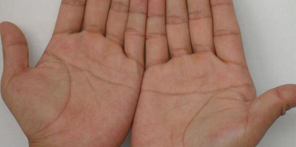 男人斷掌紋:左斷掌當將軍,右斷掌富豪,雙手斷掌非天才即白癡 - 每日頭條