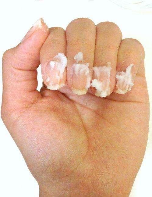 灰指甲可怕。白指甲也可怕! - 每日頭條