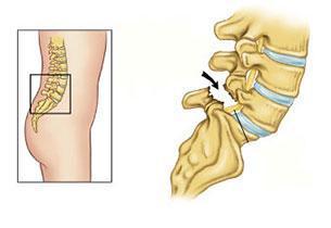 腰椎滑脫要做手術嗎? - 每日頭條