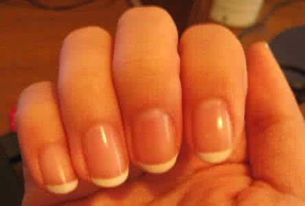 感染灰指甲的過程解析!很多人問怎麼就感染了灰指甲? - 每日頭條