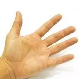 有沒有生病?看看手掌顏色就知道 - 每日頭條