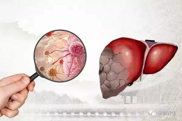 肝不好有什麼癥狀?身體有這現象多半是肝出問題了 - 每日頭條