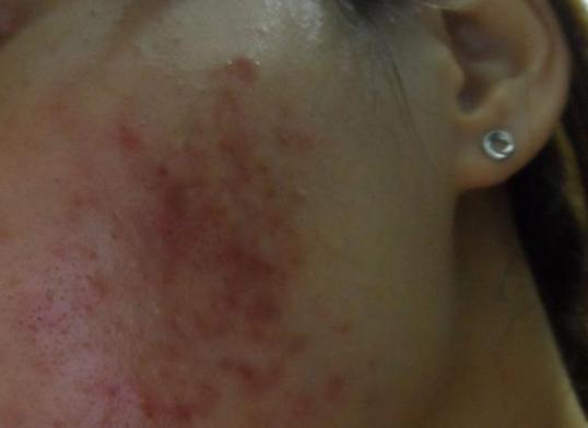 痘痘肌膚要如何防曬? - 每日頭條