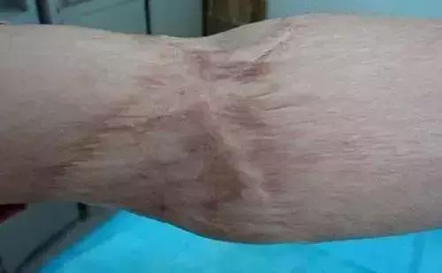 治療燙傷疤痕。這些事項需要注意! - 每日頭條