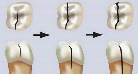 容易被忽視的牙隱裂您有嗎? - 每日頭條