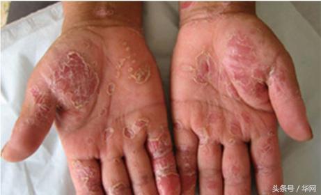 牛皮癬的病因與治療方法?牛皮癬的復發如何治療?牛皮癬的忌口 - 每日頭條