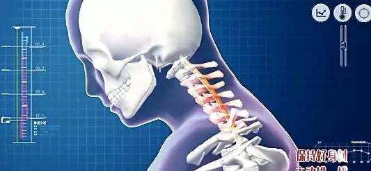 脊髓型頸椎病:嚴重可致殘!如何及早發現和治療? - 每日頭條