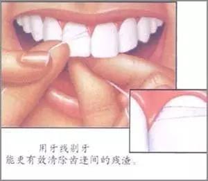5大牙齦萎縮原因及方法 - 每日頭條